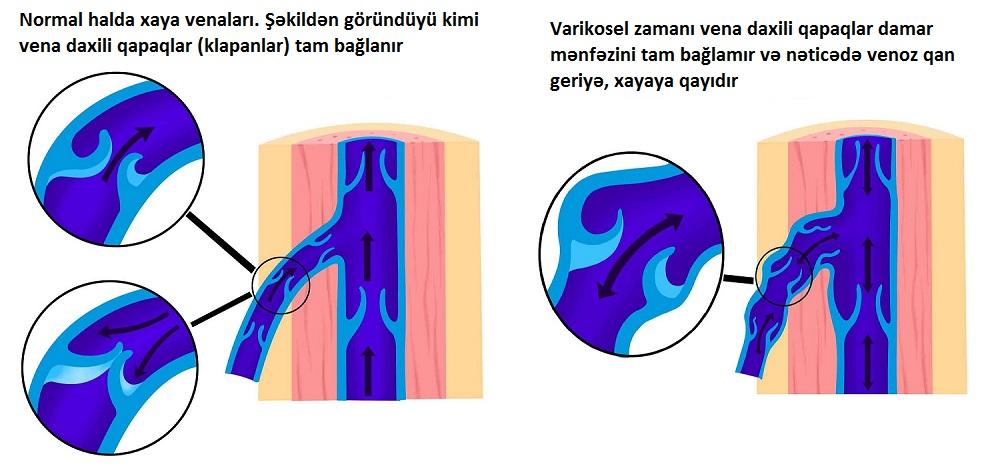 Varikoselin müalicəsi, Varikosel, damar genelmesi , dr ziyad, uroloq - androloq